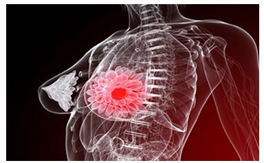 hormones cause breast cancer